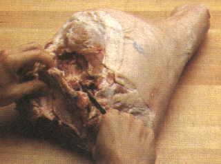 Ham Fig 5